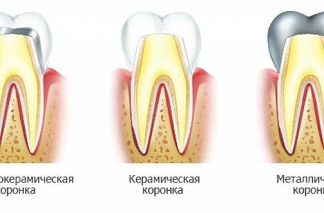 винир на 1 зуб